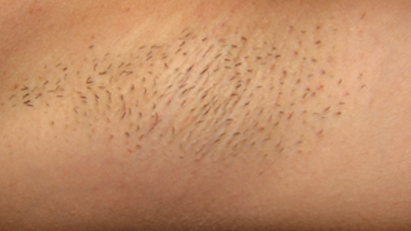 IPL Hair Removal_0003_Layer 1